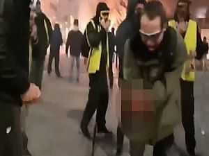 انفجار عبوة غاز يفقد متظاهرا فرنسيا يده